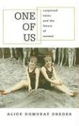 One of Us: Conjoined Twins and the Future of Normal - Alice Domurat Dreger