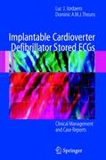 Implantable Cardioverter Defibrillator Stored ECGs