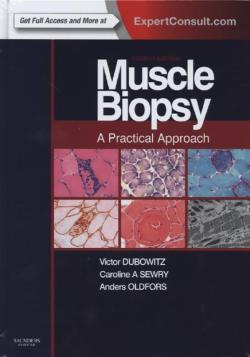 Muscle Biopsy: A Practical Approach