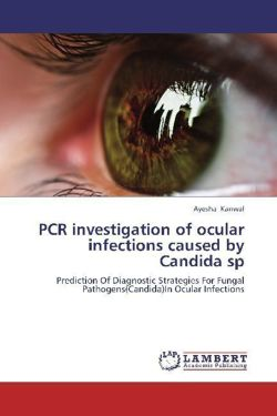 PCR investigation of ocular infections caused by Candida sp
