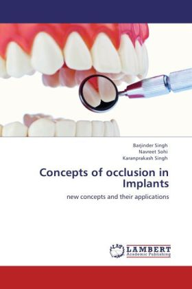 Concepts of occlusion in Implants - new concepts and their applications