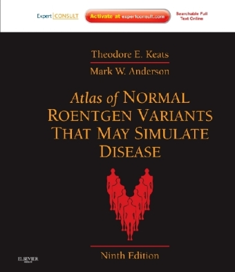 Atlas of Normal Roentgen Variants That May Simulate Disease - Expert Consult - Enhanced Online Features and Print