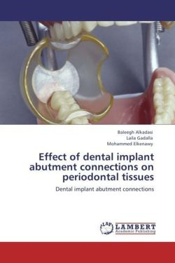 Effect of dental implant abutment connections on periodontal tissues - Alkadasi, Baleegh / Gadalla, Laila / Elkenawy, Mohammed