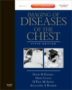 Imaging of Diseases of the Chest
