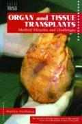 Organ and Tissue Transplants: Medical Miracles and Challenges - McClellan, Marilyn Gray; McClellan, Marityn